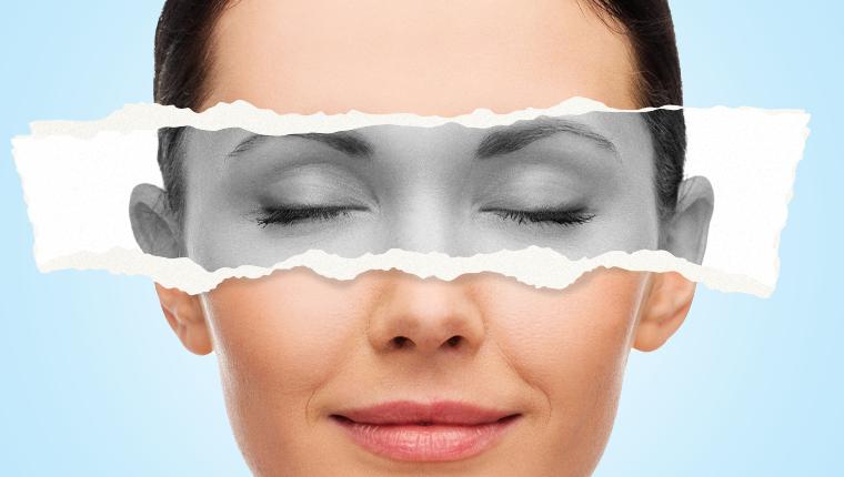 PLEXR Ameliyatsız Göz Kapağı Estetiği